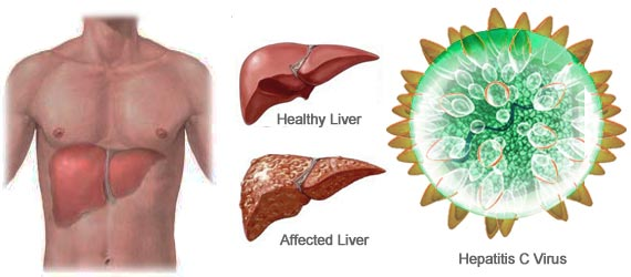 hepatitis c healthy and affected liver