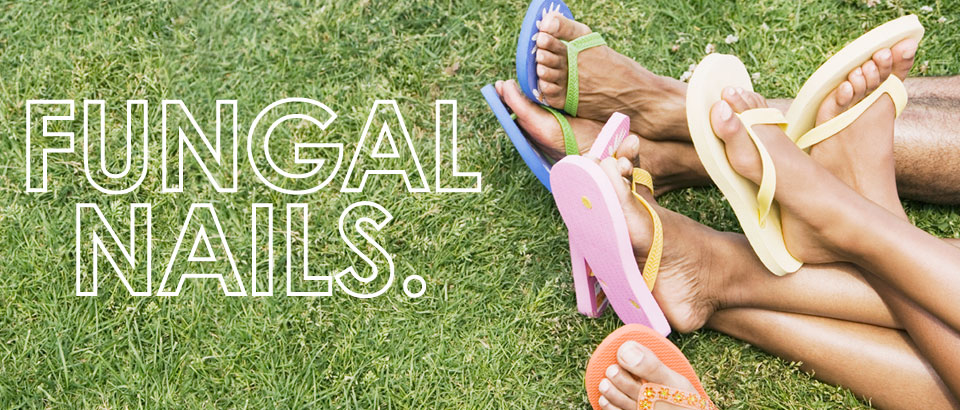 Fungal nails people with flip flops