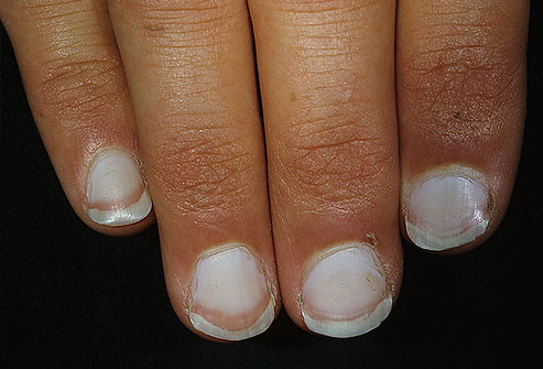 faded white nails issues with liver