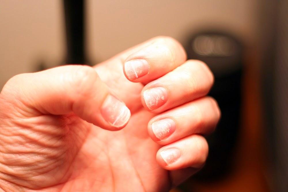 ridges nails issues