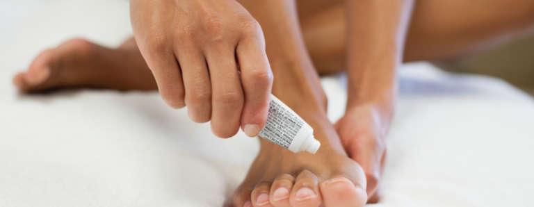 toe fungus treatment