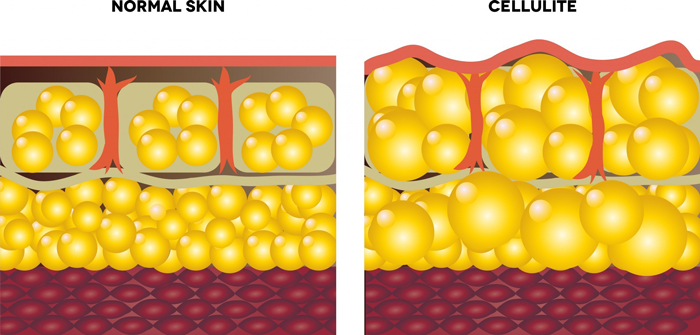 cellulite-removal-cellulite-cells