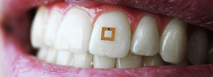innovative-health-science-smart-tooth-sensors