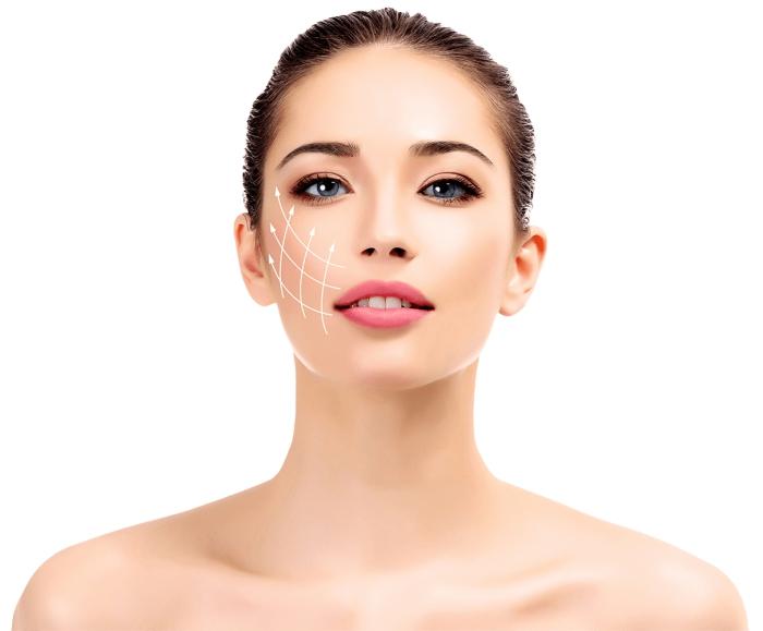 Botox Injections Helps migrains
